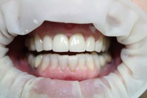 відбілювання зубів у Львові