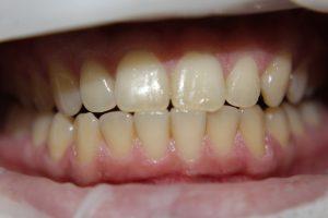естетична стоматологія у клініці Elit-S