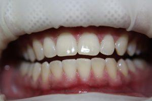 відбілювання зубів у клініці Elit-S